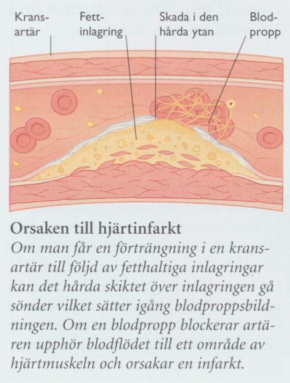 rosuvastatin och hjärtinfarkt